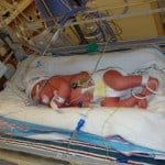 Scars of being a #Preemie Mom