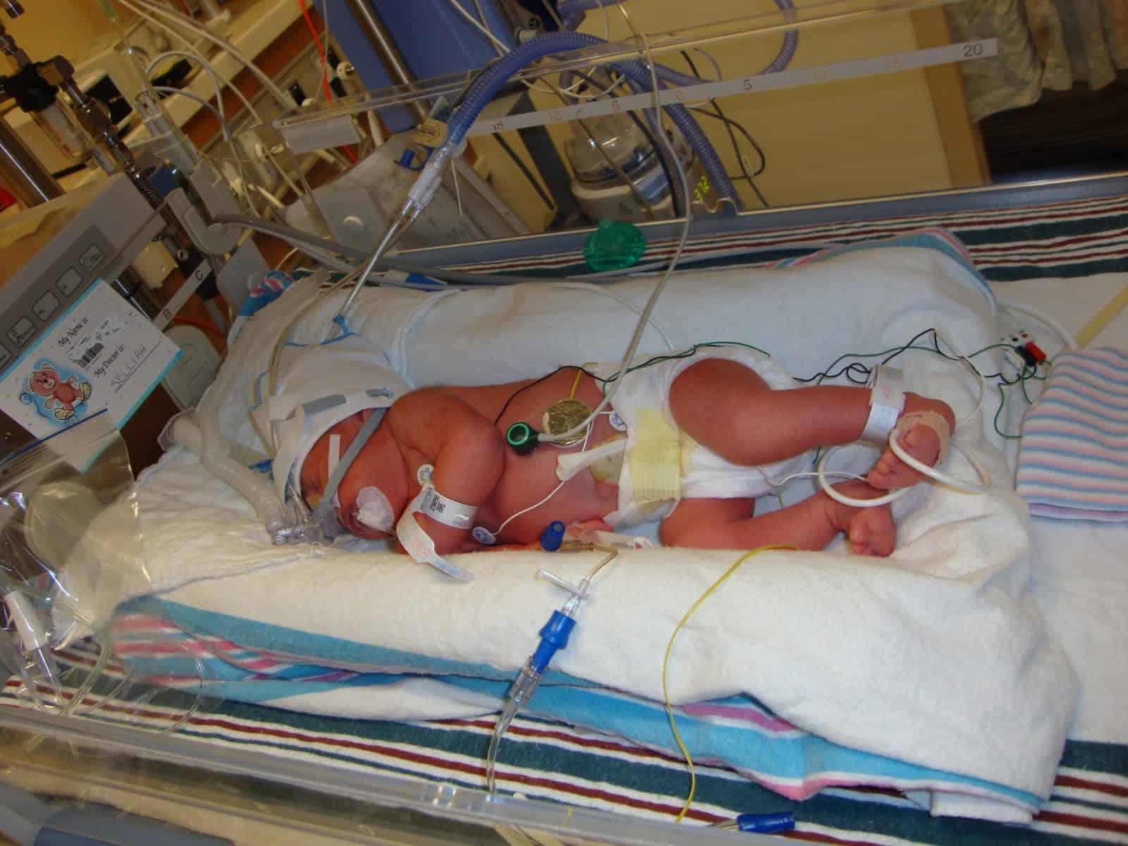 32 week preemie in NICU