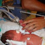 Introducing Monkey – From the NICU to now – Part1