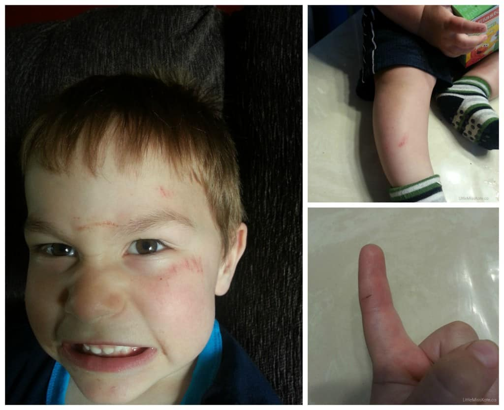 scrapes bruises and splinters